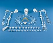 Einzelknochen